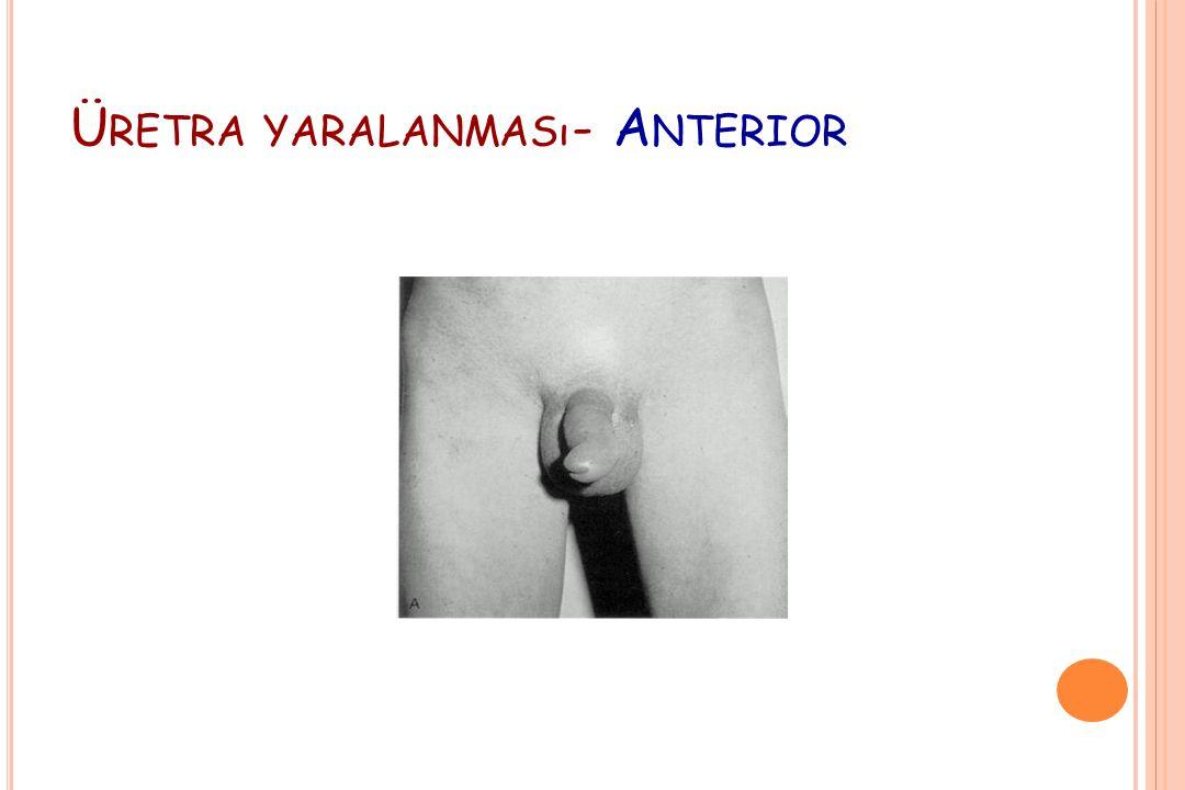 Üretra yaralanması- Anterior