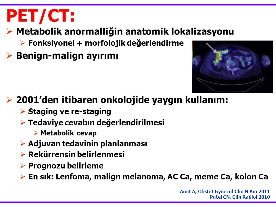 PET/CT: Metabolik anormalliğin anatomik lokalizasyonu