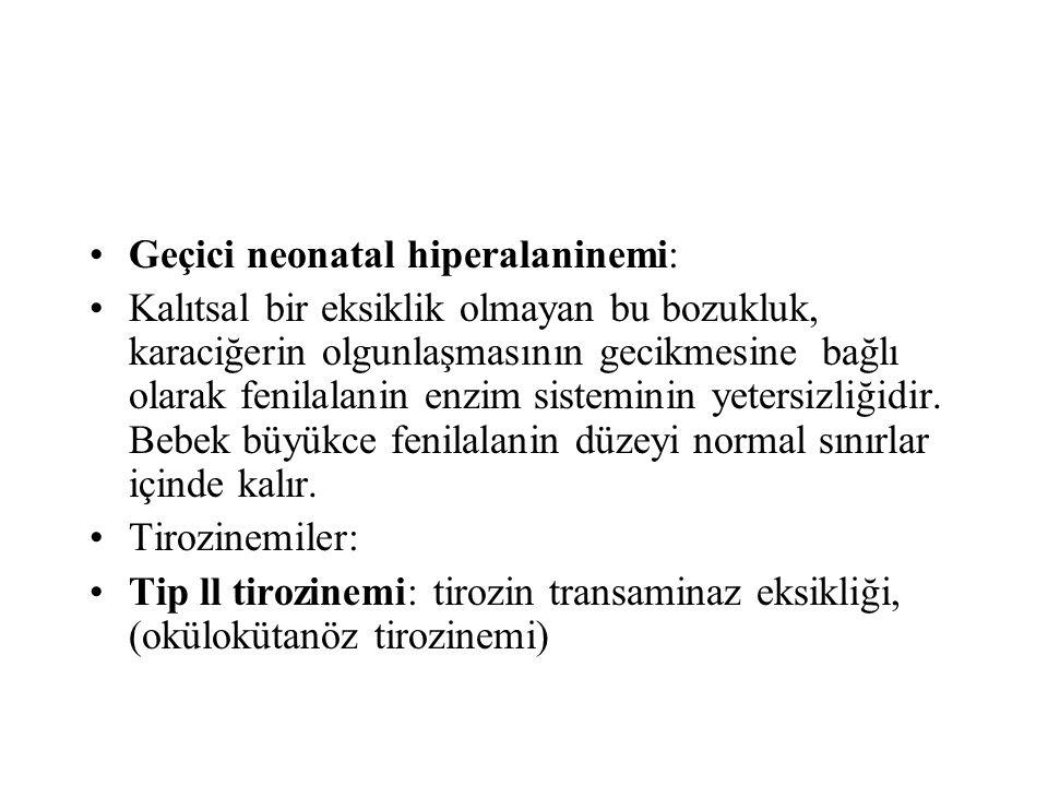 Geçici neonatal hiperalaninemi: