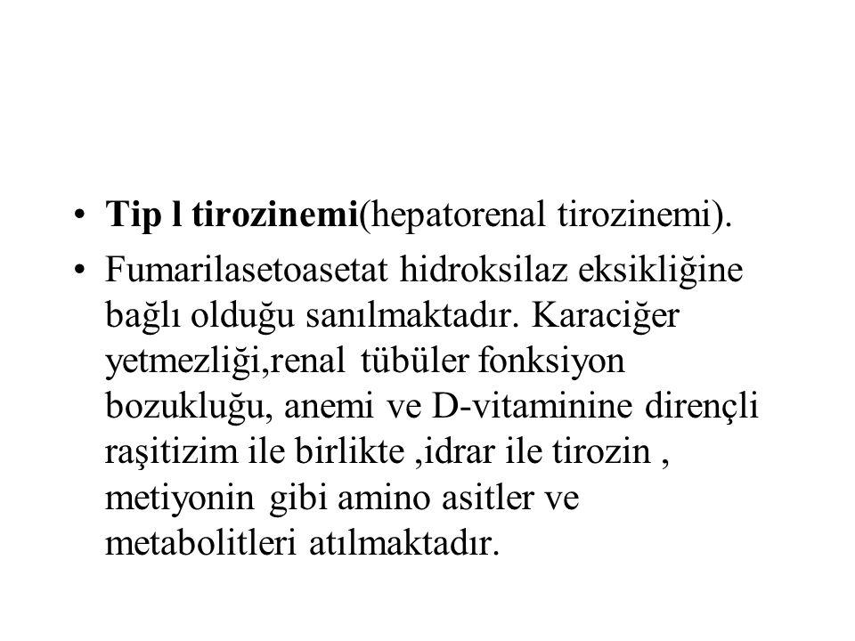 Tip l tirozinemi(hepatorenal tirozinemi).
