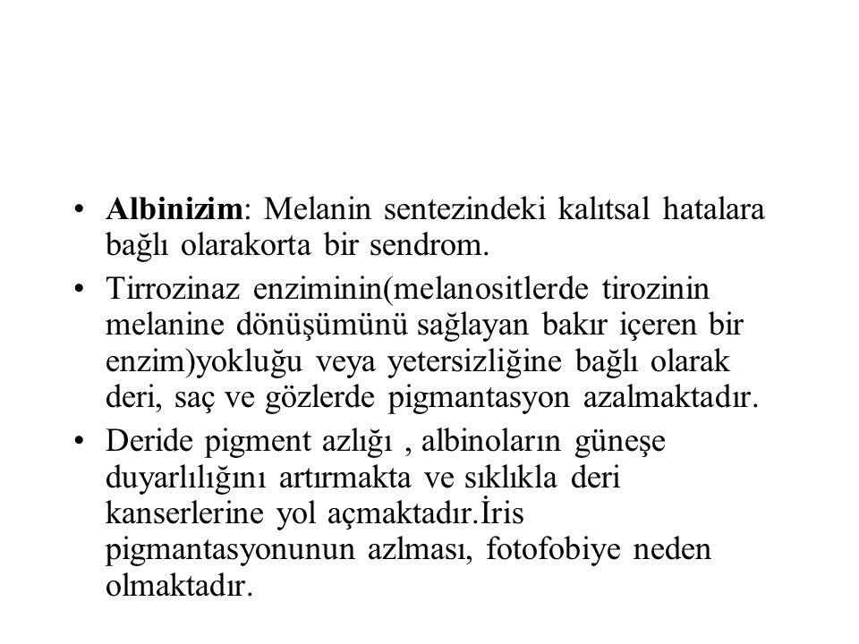 Albinizim: Melanin sentezindeki kalıtsal hatalara bağlı olarakorta bir sendrom.