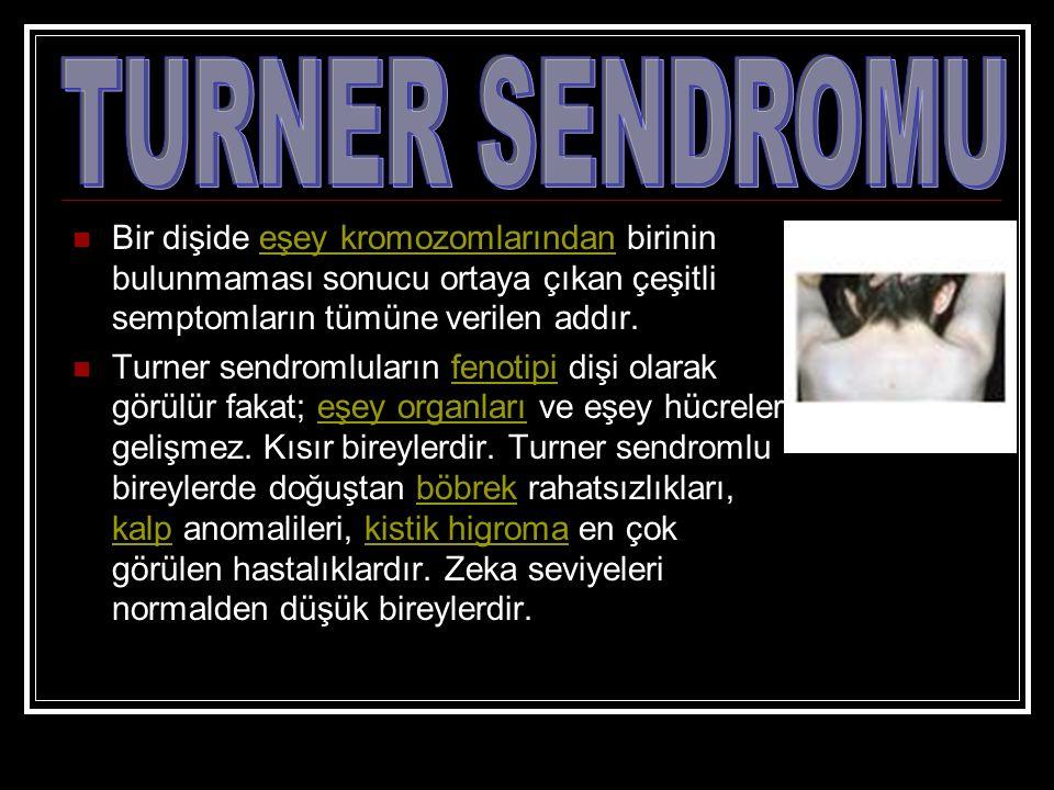 TURNER SENDROMU Bir dişide eşey kromozomlarından birinin bulunmaması sonucu ortaya çıkan çeşitli semptomların tümüne verilen addır.