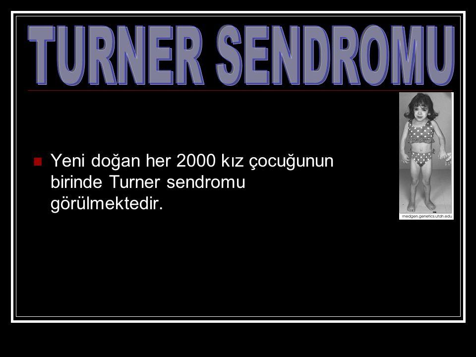 TURNER SENDROMU Yeni doğan her 2000 kız çocuğunun birinde Turner sendromu görülmektedir.