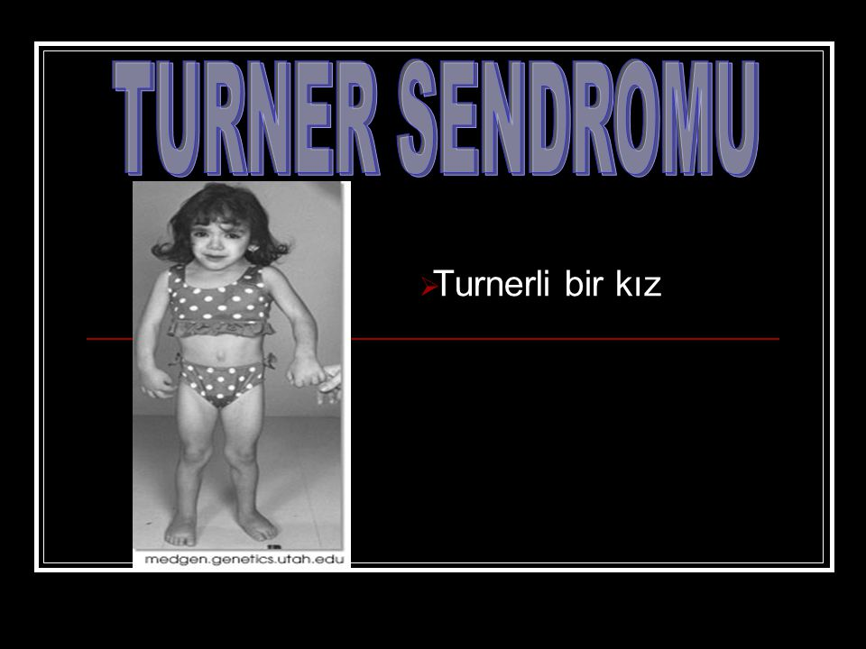 TURNER SENDROMU Turnerli bir kız