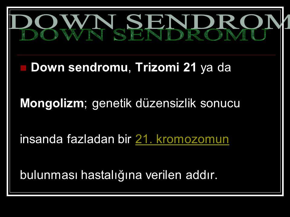 DOWN SENDROMU Down sendromu, Trizomi 21 ya da