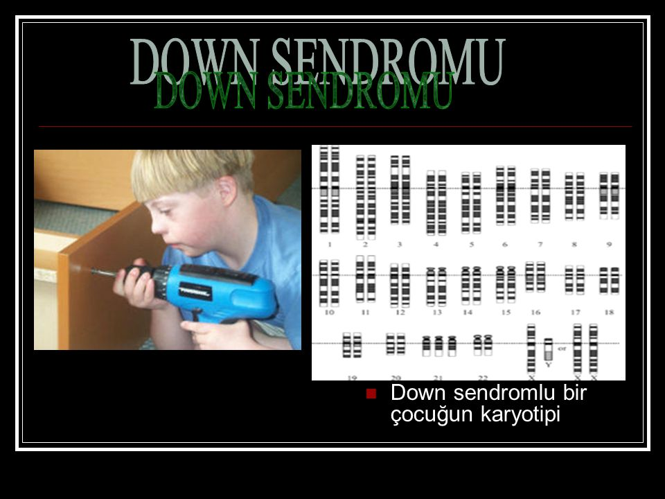 DOWN SENDROMU Down sendromlu bir çocuğun karyotipi
