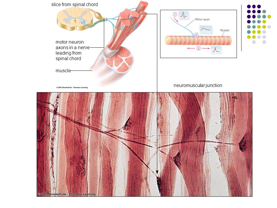 slice from spinal chord