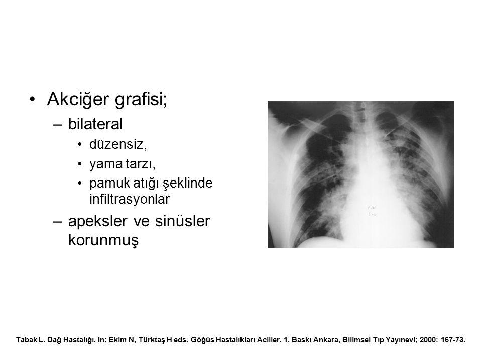Akciğer grafisi; bilateral apeksler ve sinüsler korunmuş düzensiz,