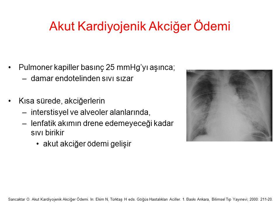 Akut Kardiyojenik Akciğer Ödemi