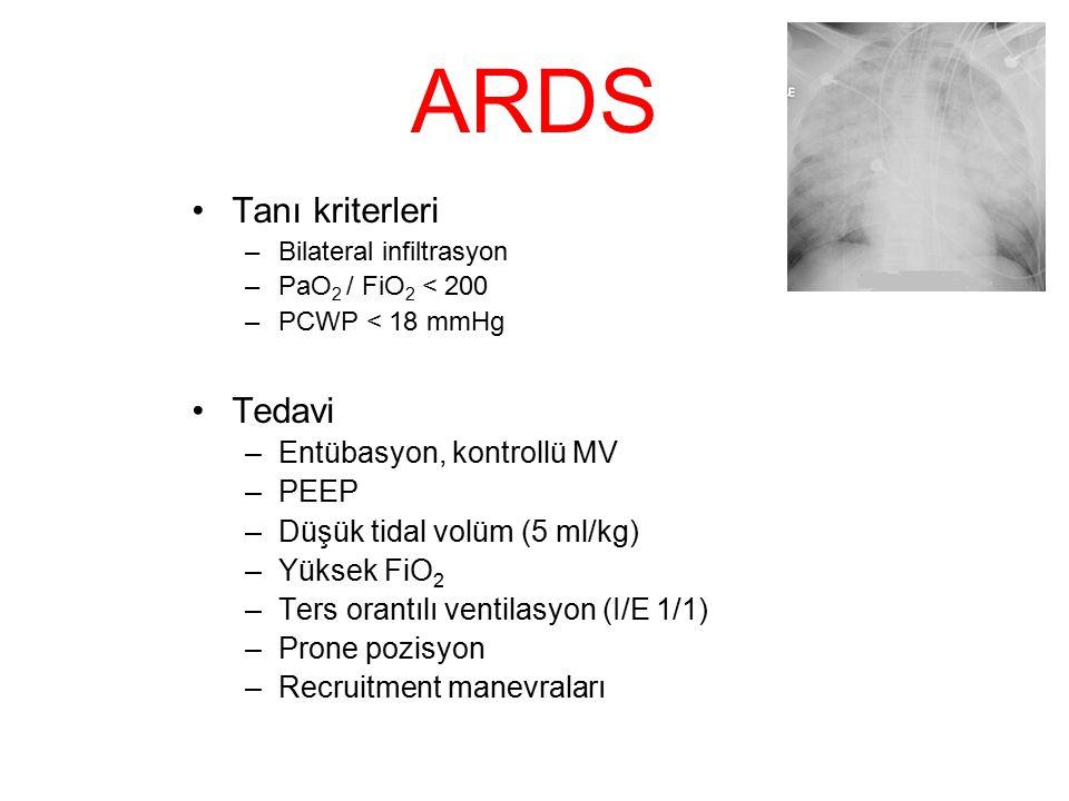 ARDS Tanı kriterleri Tedavi Entübasyon, kontrollü MV PEEP
