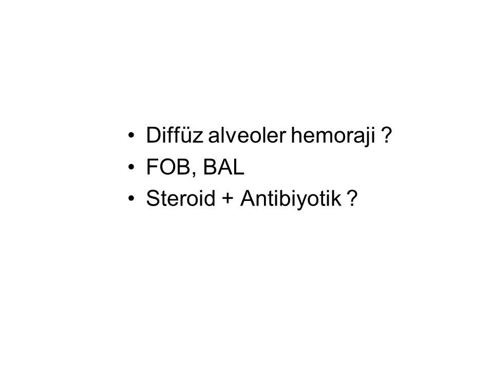Diffüz alveoler hemoraji
