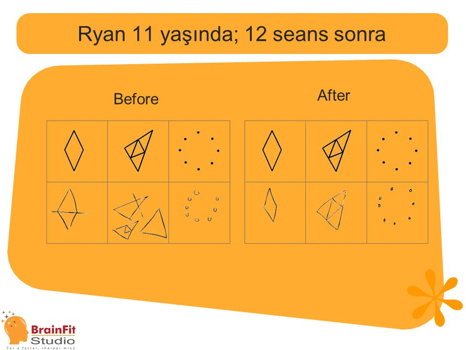 Ryan 11 yaşında; 12 seans sonra