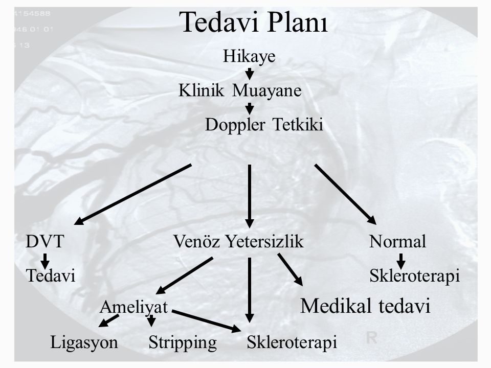 Tedavi Planı Hikaye Klinik Muayane Doppler Tetkiki