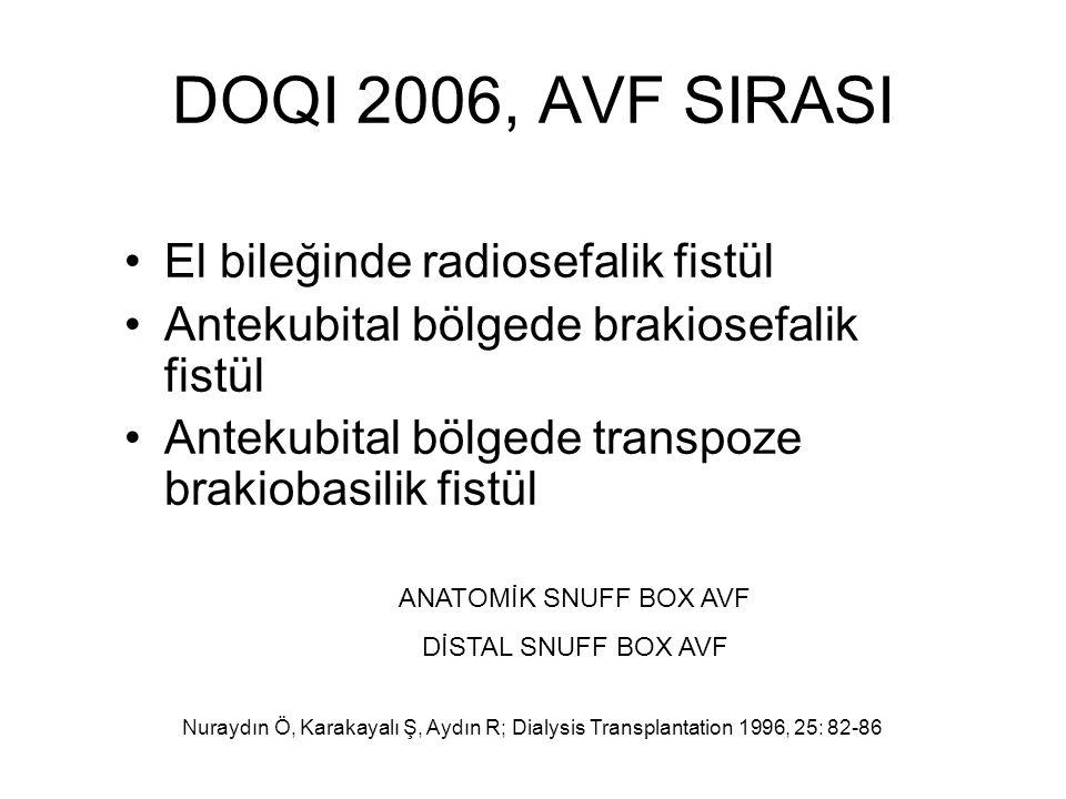 DOQI 2006, AVF SIRASI El bileğinde radiosefalik fistül