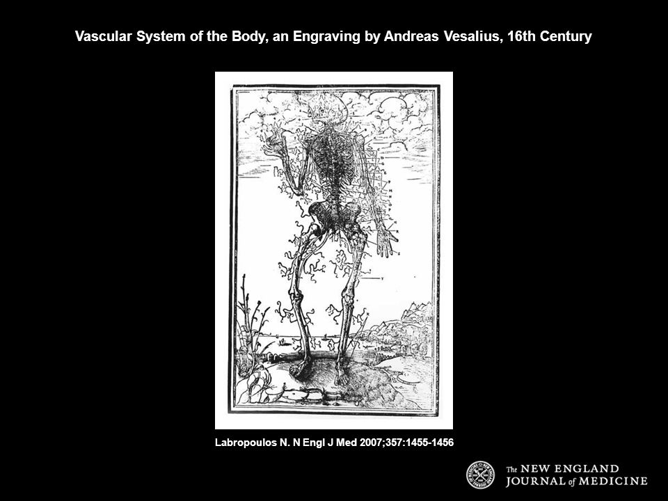 Vascular System of the Body, an Engraving by Andreas Vesalius, 16th Century