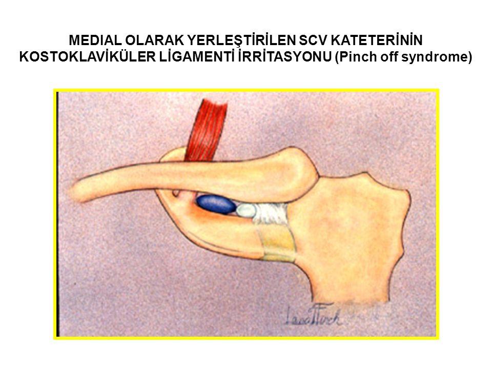 MEDIAL OLARAK YERLEŞTİRİLEN SCV KATETERİNİN KOSTOKLAVİKÜLER LİGAMENTİ İRRİTASYONU (Pinch off syndrome)