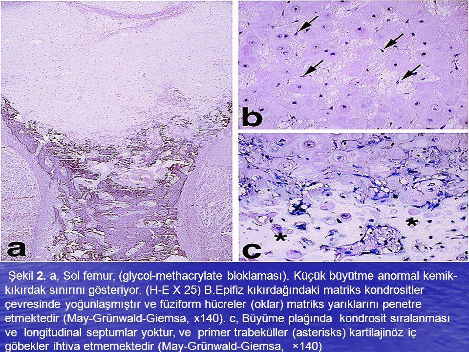 Şekil 2. a, Sol femur, (glycol-methacrylate bloklaması)