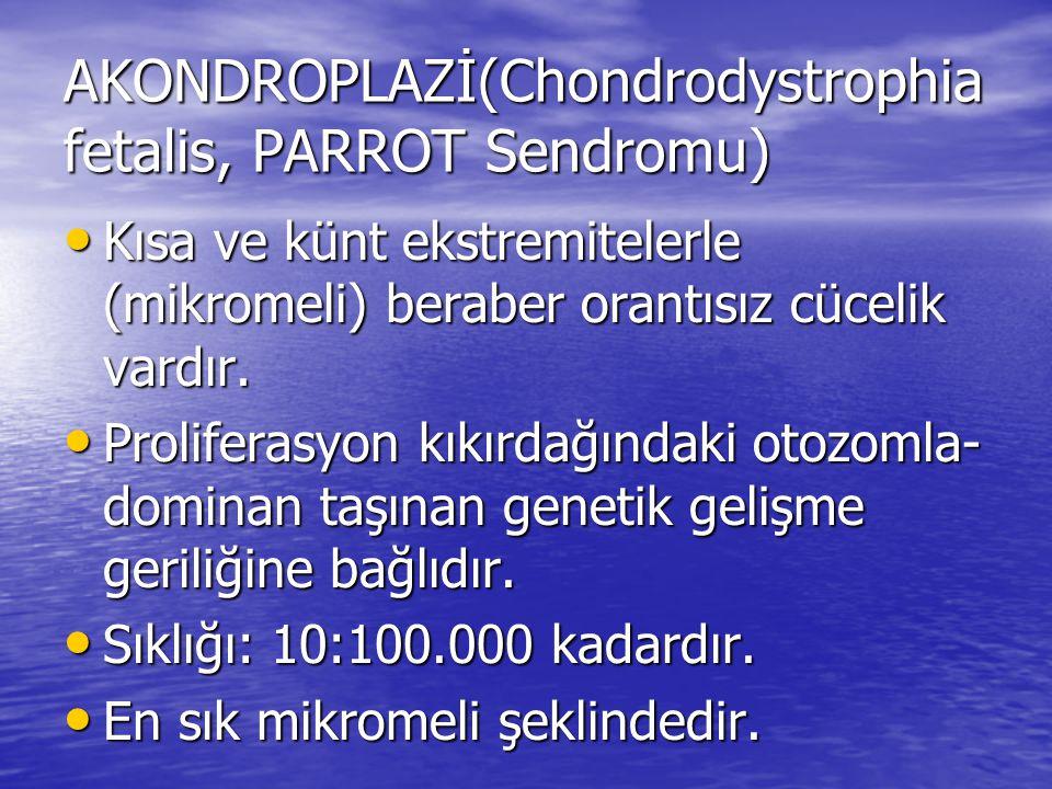 AKONDROPLAZİ(Chondrodystrophia fetalis, PARROT Sendromu)