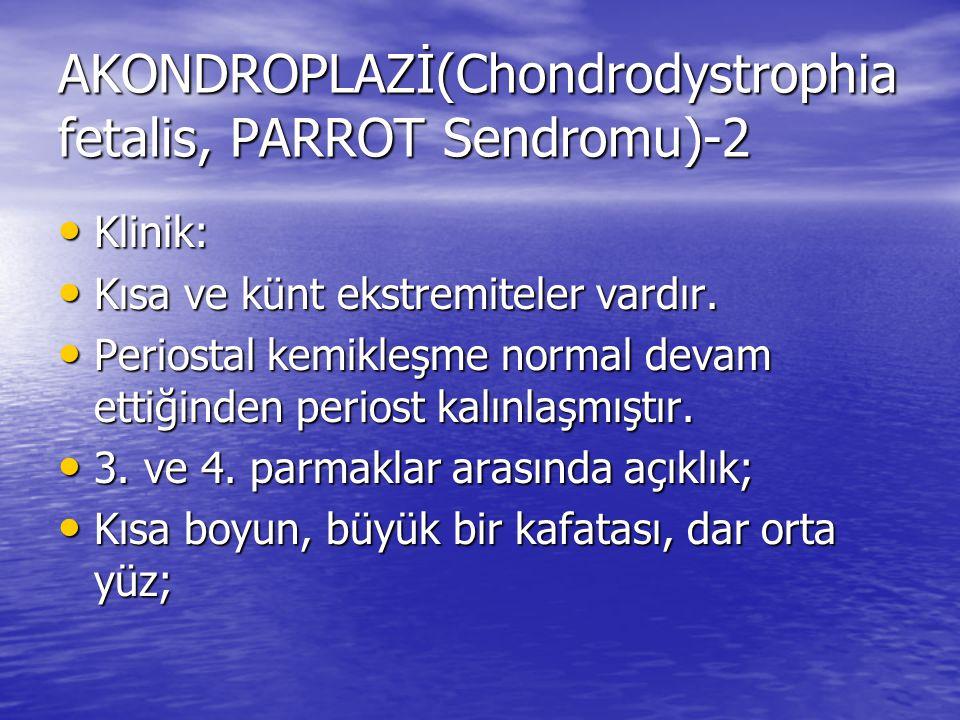 AKONDROPLAZİ(Chondrodystrophia fetalis, PARROT Sendromu)-2