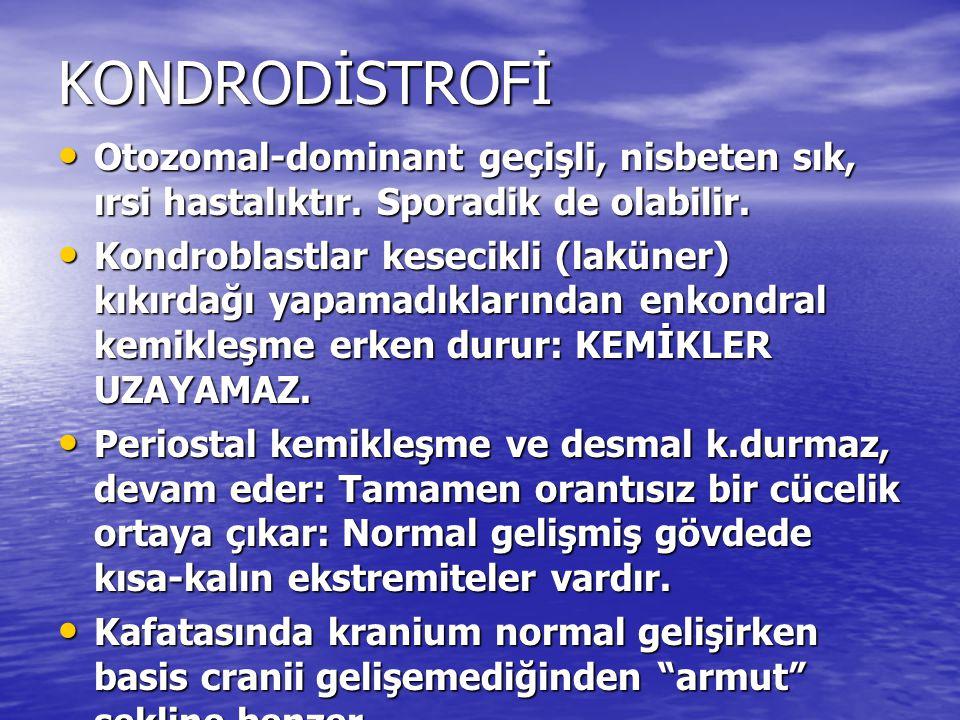 KONDRODİSTROFİ Otozomal-dominant geçişli, nisbeten sık, ırsi hastalıktır. Sporadik de olabilir.