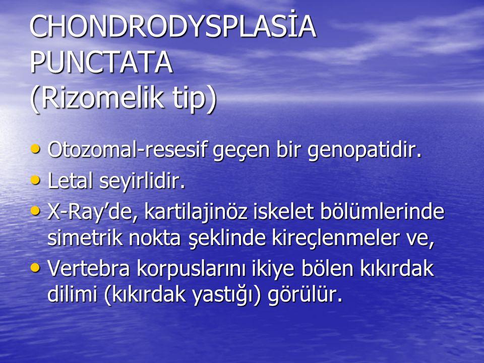 CHONDRODYSPLASİA PUNCTATA (Rizomelik tip)