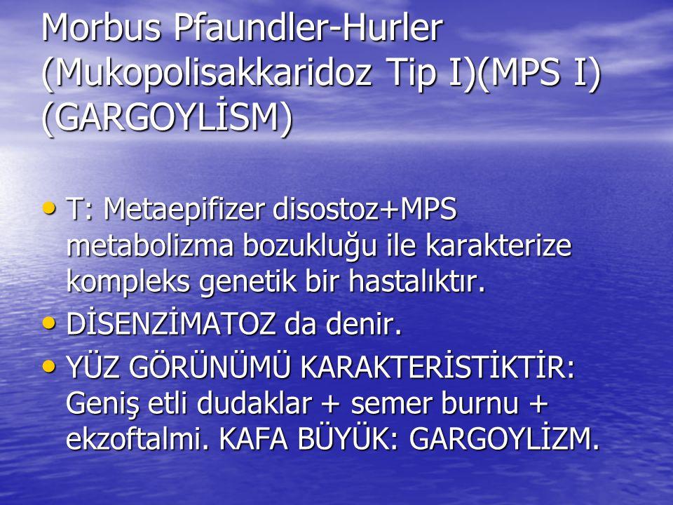 Morbus Pfaundler-Hurler (Mukopolisakkaridoz Tip I)(MPS I) (GARGOYLİSM)
