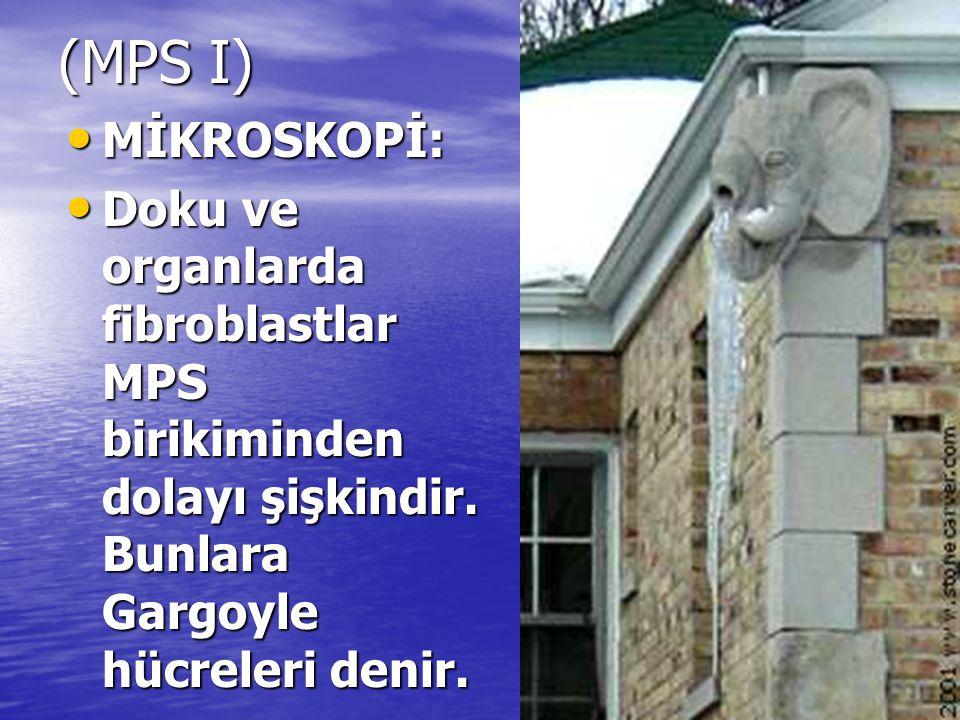(MPS I) MİKROSKOPİ: Doku ve organlarda fibroblastlar MPS birikiminden dolayı şişkindir.