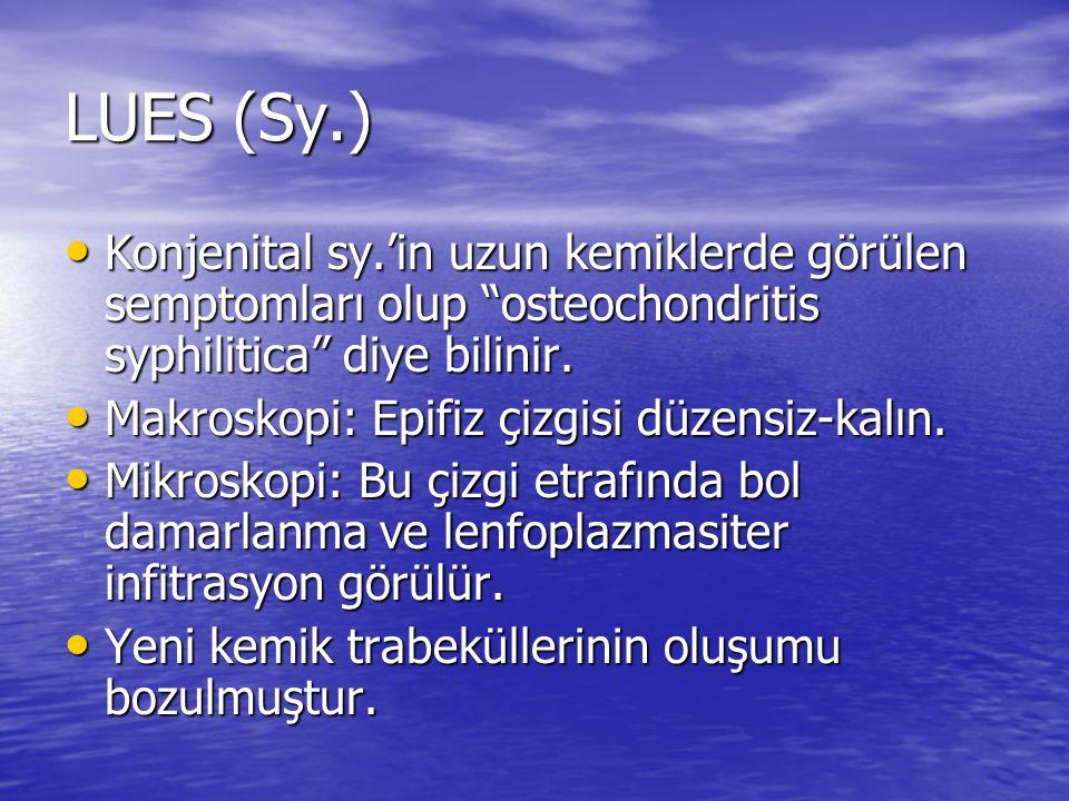 LUES (Sy.) Konjenital sy.'in uzun kemiklerde görülen semptomları olup osteochondritis syphilitica diye bilinir.
