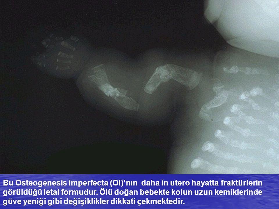 Bu Osteogenesis imperfecta (OI)'nın daha in utero hayatta fraktürlerin görüldüğü letal formudur.