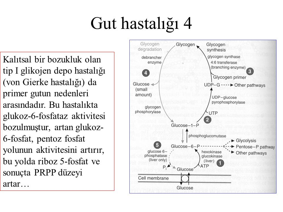 Gut hastalığı 4