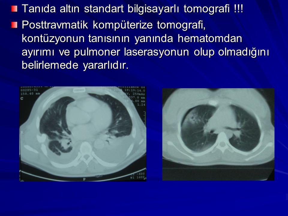 Tanıda altın standart bilgisayarlı tomografi !!!