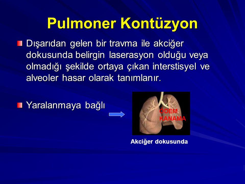 Pulmoner Kontüzyon
