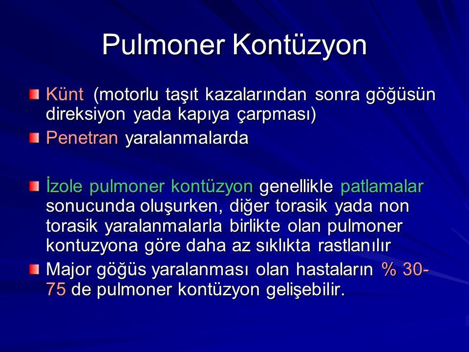 Pulmoner Kontüzyon Künt (motorlu taşıt kazalarından sonra göğüsün direksiyon yada kapıya çarpması)