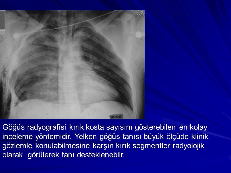 Göğüs radyografisi kırık kosta sayısını gösterebilen en kolay inceleme yöntemidir.