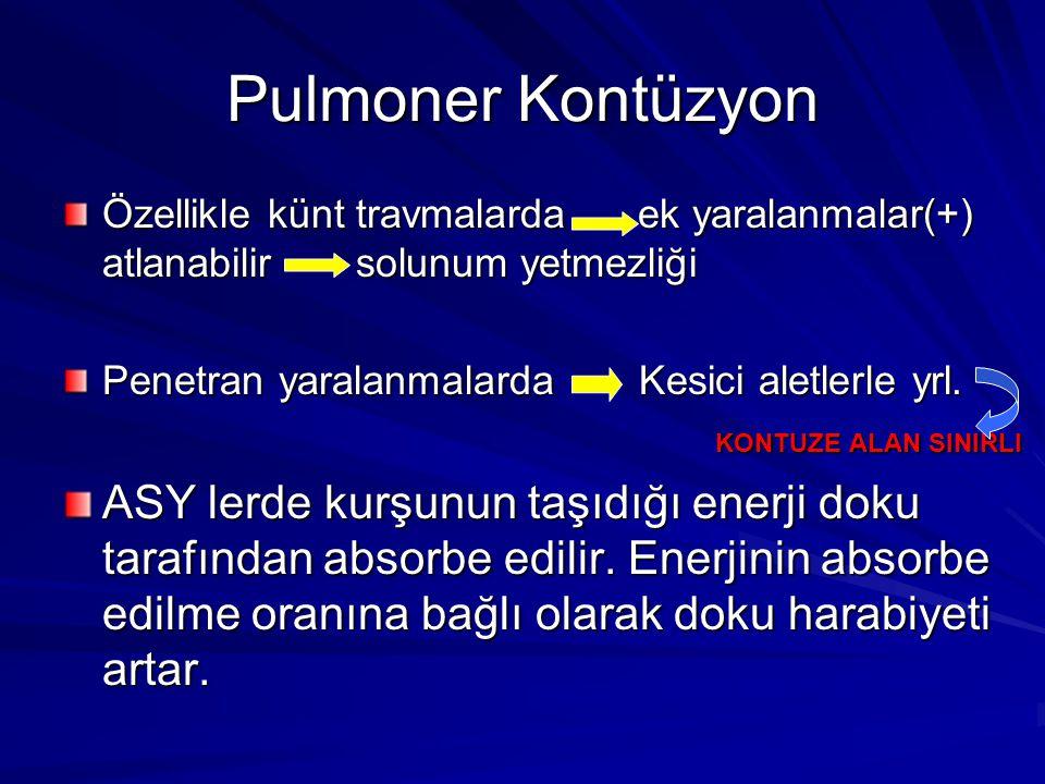 Pulmoner Kontüzyon Özellikle künt travmalarda ek yaralanmalar(+) atlanabilir solunum yetmezliği.