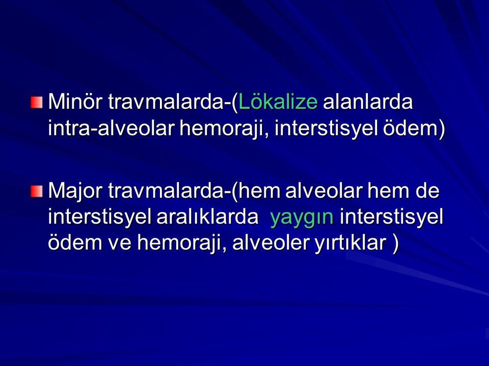 Minör travmalarda-(Lökalize alanlarda intra-alveolar hemoraji, interstisyel ödem)
