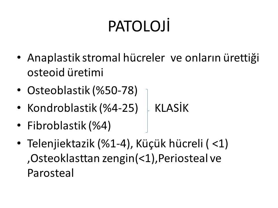 PATOLOJİ Anaplastik stromal hücreler ve onların ürettiği osteoid üretimi. Osteoblastik (%50-78) Kondroblastik (%4-25) KLASİK.