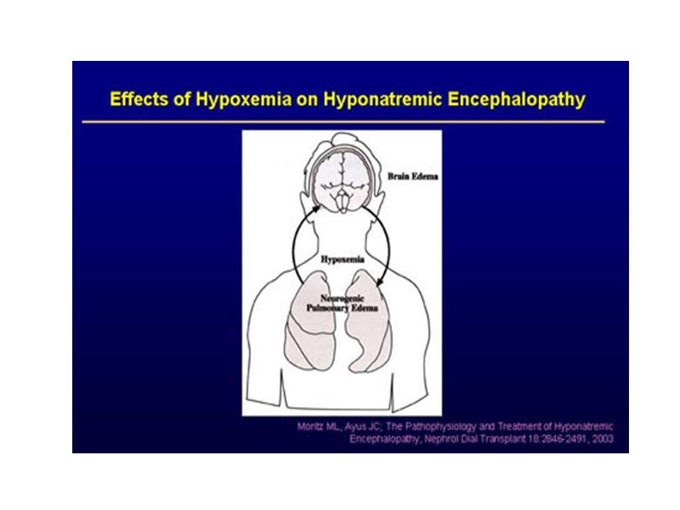 Serebral ödem>nonkardiojenik akciğer ödemi>Hipoksi geliştikten sonra hipoksinin kendisi de beynin ödeme karşı adaptasyonunu bozacak ve hastanın prognozu daha da kötüleşecektir.