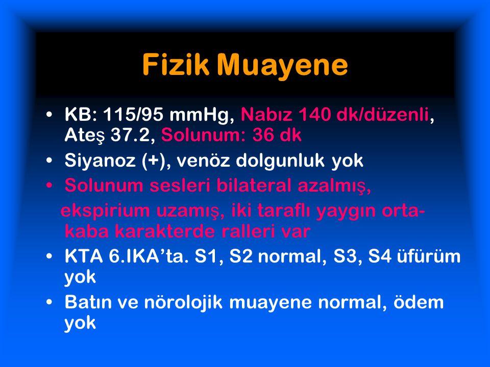Fizik Muayene KB: 115/95 mmHg, Nabız 140 dk/düzenli, Ateş 37.2, Solunum: 36 dk. Siyanoz (+), venöz dolgunluk yok.