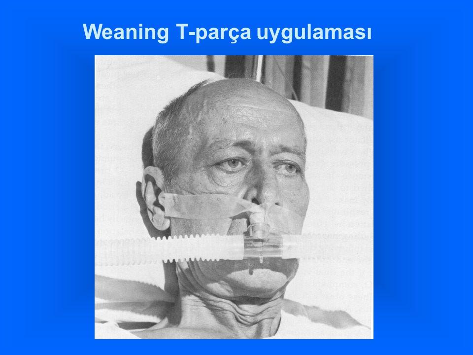 Weaning T-parça uygulaması