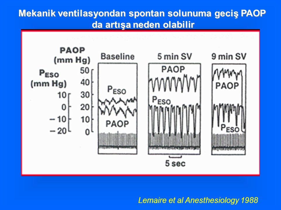 Mekanik ventilasyondan spontan solunuma geciş PAOP