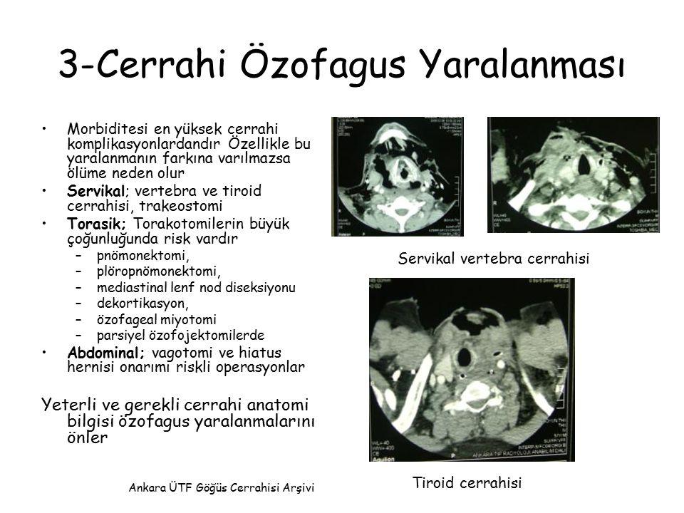 3-Cerrahi Özofagus Yaralanması