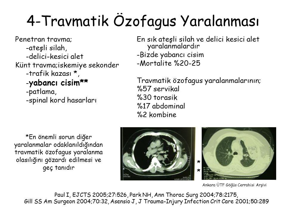 4-Travmatik Özofagus Yaralanması