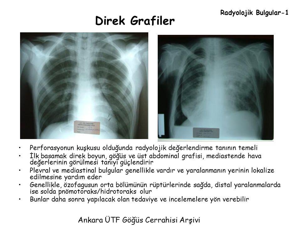 Direk Grafiler Ankara ÜTF Göğüs Cerrahisi Arşivi Radyolojik Bulgular-1