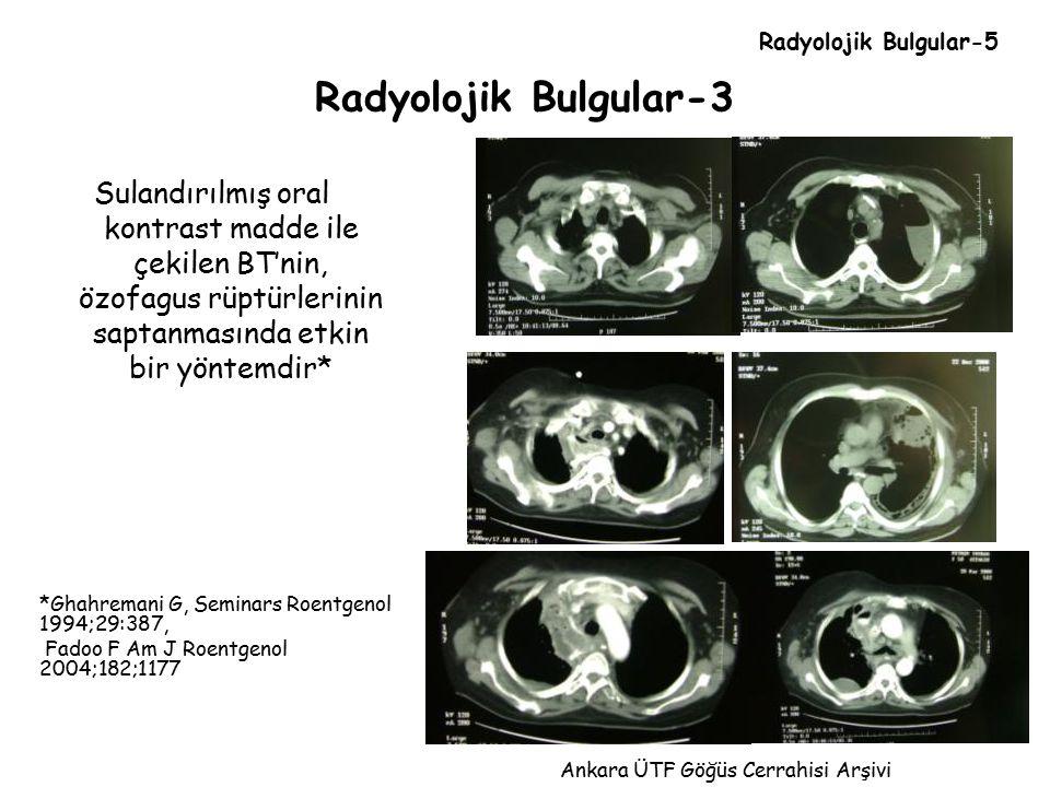 Radyolojik Bulgular-5 Radyolojik Bulgular-3.
