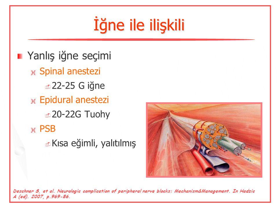 İğne ile ilişkili Yanlış iğne seçimi Spinal anestezi 22-25 G iğne
