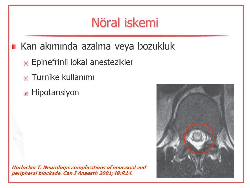 Nöral iskemi Kan akımında azalma veya bozukluk