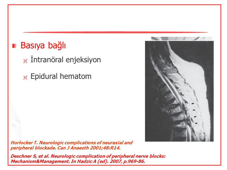 Basıya bağlı İntranöral enjeksiyon Epidural hematom