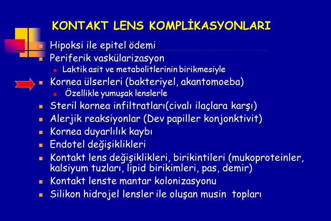 KONTAKT LENS KOMPLİKASYONLARI