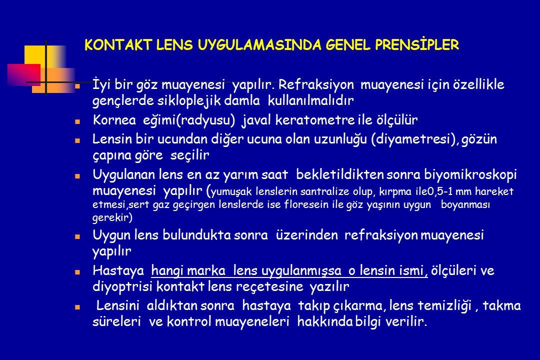 KONTAKT LENS UYGULAMASINDA GENEL PRENSİPLER